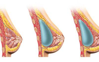 La mejor posición del implante mamario