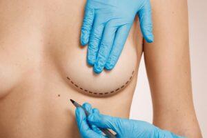 Cirugía de pecho vía el surco submamario