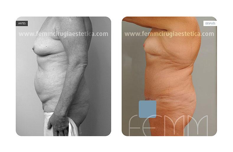 Abdominoplastia  fotos de antes y despues · Caso 9 - Fotografía 1