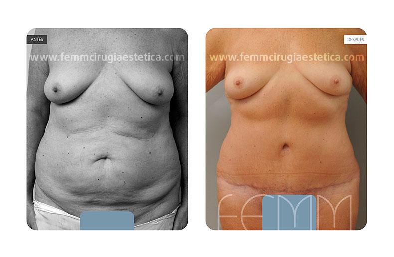 Abdominoplastia  fotos de antes y despues · Caso 9 - Fotografía 2