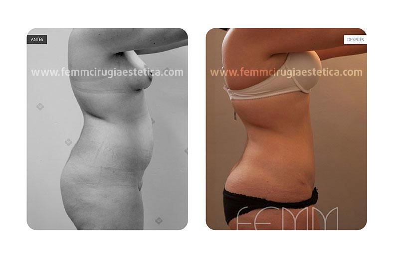 Abdominoplastia mediante plicatura de músculos rectos · Caso 2 - Fotografía 3