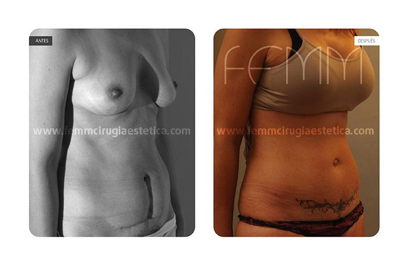 Abdominoplastia y liposucción abdomen-flancos · Caso 5 - Fotografía 2
