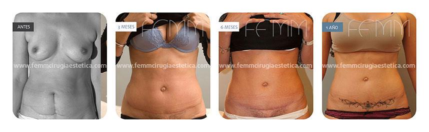 Abdominoplastia y liposucción abdomen-flancos · Caso 5 - Fotografía 3