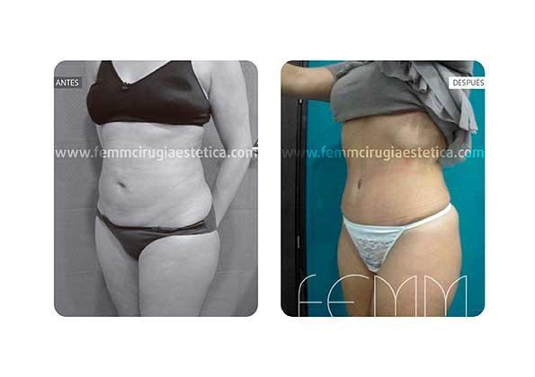 Abdominoplastia por embarazo y cambio de peso · Caso 7 - Fotografía 2