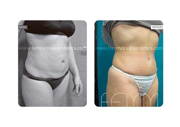 Abdominoplastia por embarazo y cambio de peso · Caso 7 - Fotografía 4