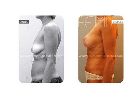 Abdominoplastia y elevación de pecho · Caso 10 - Fotografía 1