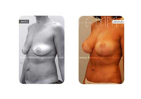 Abdominoplastia y elevación de pecho · Caso 10 - Fotografía 2