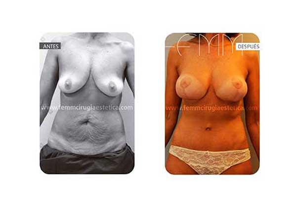 Abdominoplastia y elevación de pecho · Caso 10 - Fotografía 3