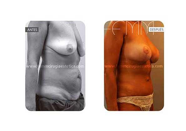 Abdominoplastia y elevación de pecho · Caso 10 - Fotografía 4
