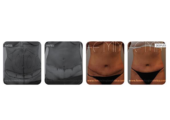 Umbilicoplastia y aumento de pecho con prótesis 370cc · Caso 1 - Fotografía 2