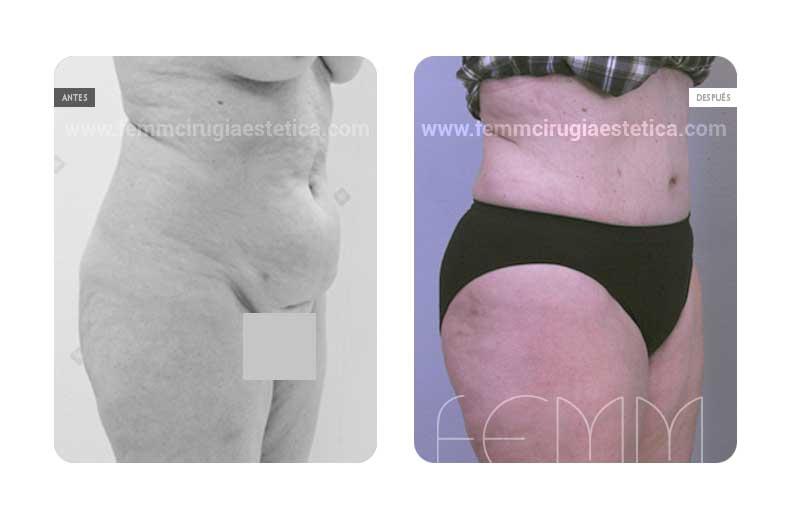 Abdominoplastia y Liposucción · Caso 8 - Fotografía 2