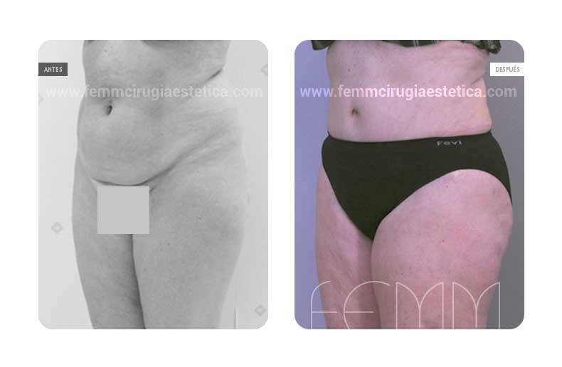 Abdominoplastia y Liposucción · Caso 8 - Fotografía 4