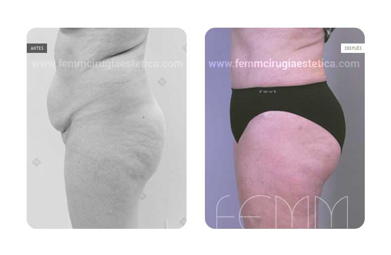 Abdominoplastia y Liposucción · Caso 8 - Fotografía 5