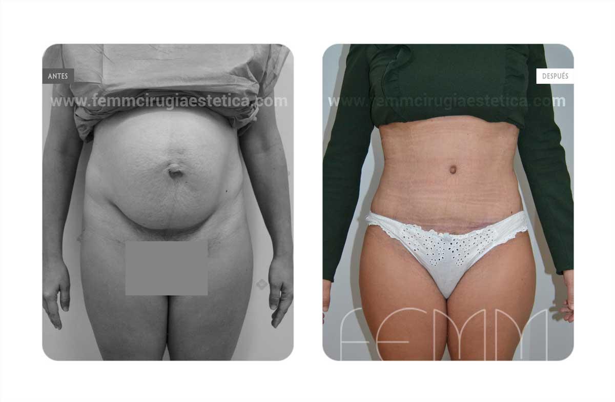 Abdominoplastia por embarazo · Caso 3 - Fotografía 1