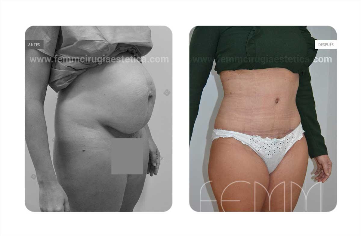 Abdominoplastia por embarazo · Caso 3 - Fotografía 2