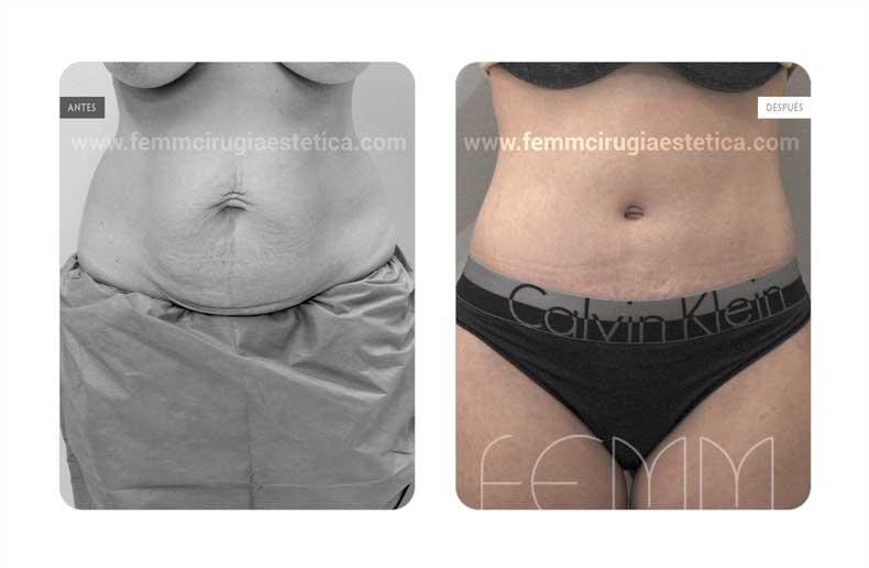 Abdominoplastia y liposucción por embarazos · Caso 11 - Fotografía 1