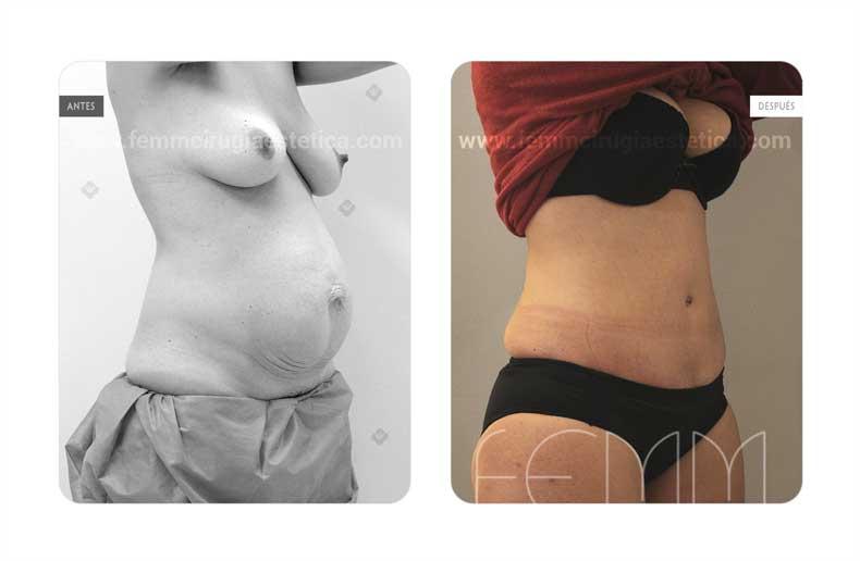 Abdominoplastia · Caso 12 - Fotografía 1