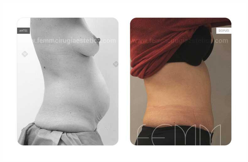 Abdominoplastia · Caso 12 - Fotografía 2