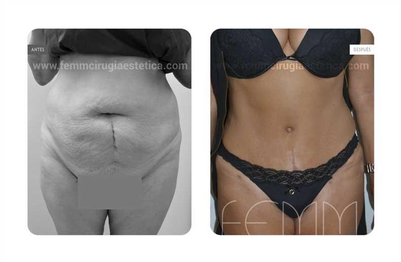 Abdominoplastia · Caso 17 - Fotografía 1
