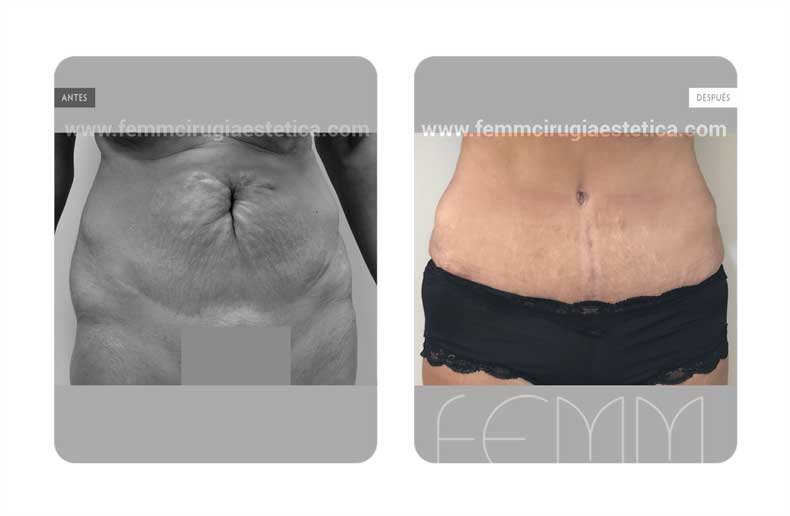 Abdominoplastia · Caso 18 - Fotografía 1