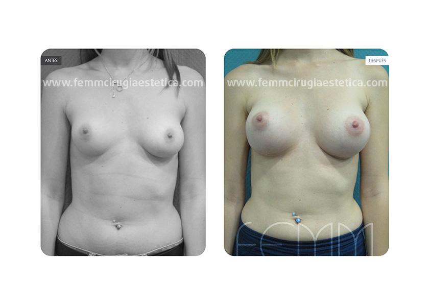 Asimetría mamaria y aumento de pecho con prótesis 320 cc · Caso 1 - Fotografía 3