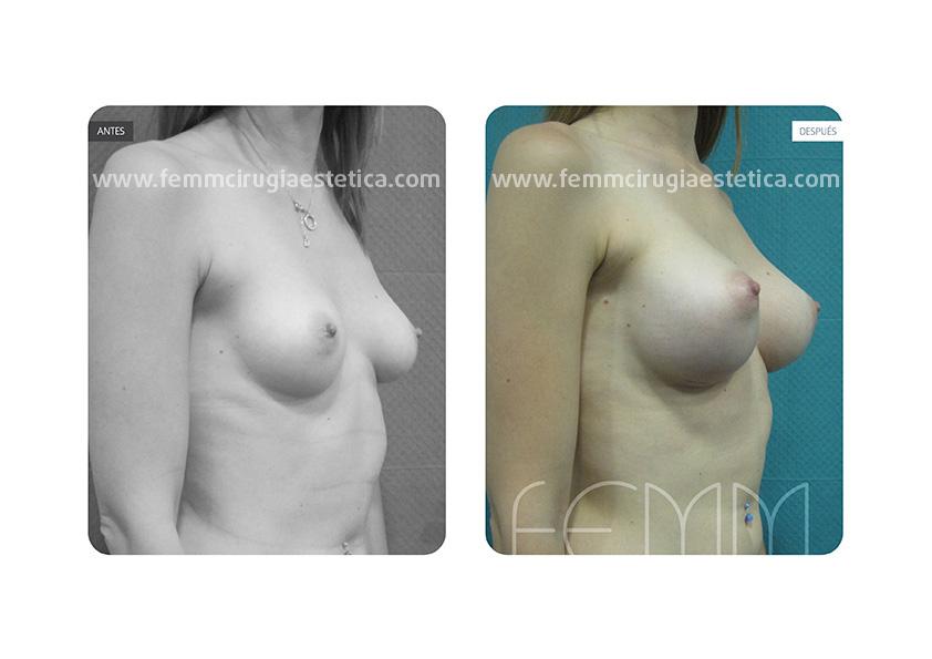 Asimetría mamaria y aumento de pecho con prótesis 320 cc · Caso 1 - Fotografía 4