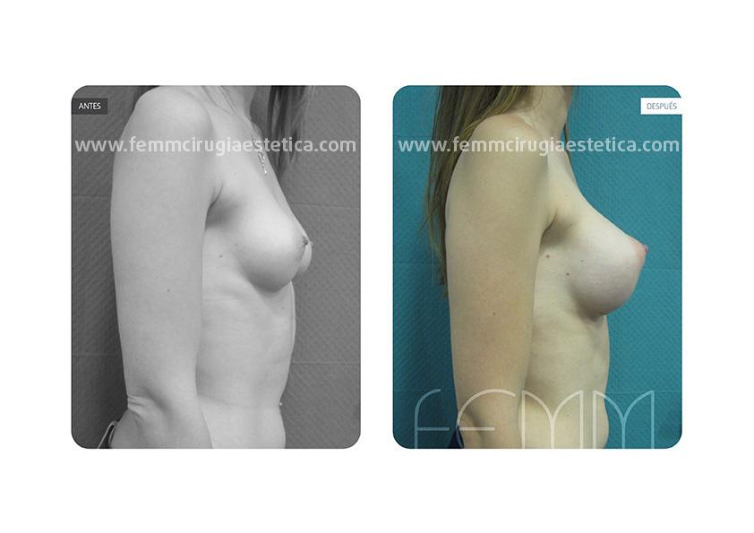 Asimetría mamaria y aumento de pecho con prótesis 320 cc · Caso 1 - Fotografía 5