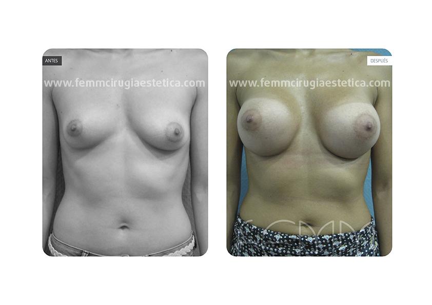 Asimetría mamaria y aumento de pecho con prótesis 380 cc · Caso 3 - Fotografía 1