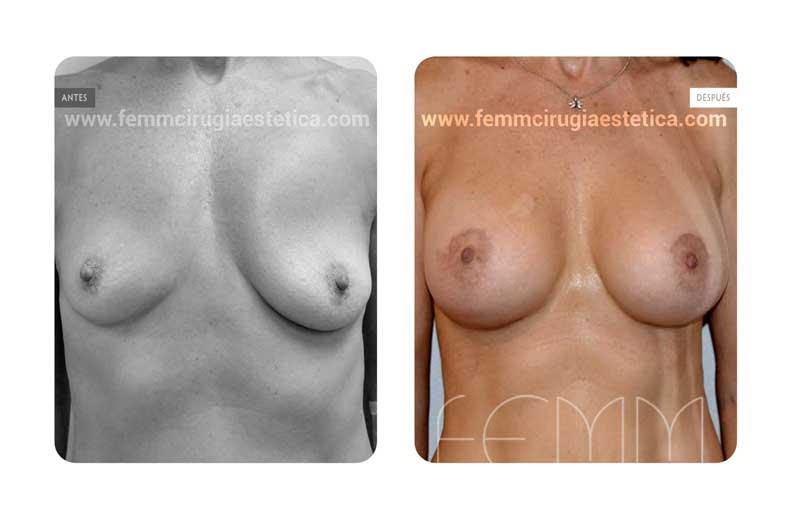 Asimetría mamaria y aumento de pecho con prótesis 430 cc · Caso 2 - Fotografía 1