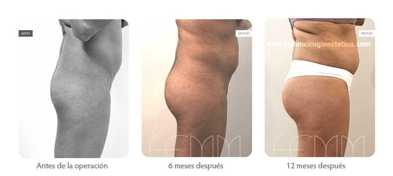 Aumento de glúteo con implantes anatómicos de 305cc  · Caso 10 - Fotografía 3