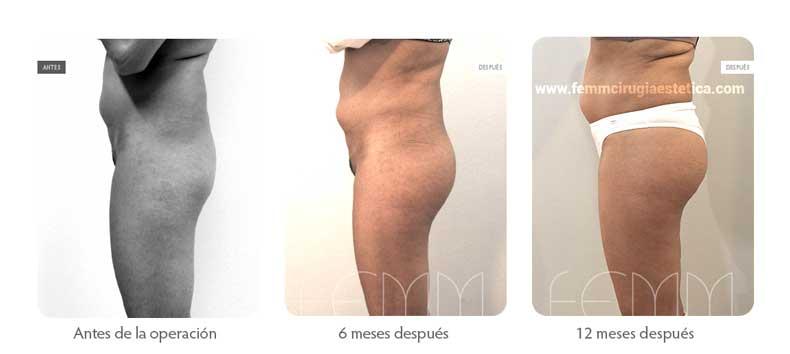 Aumento de glúteo con implantes anatómicos de 305cc  · Caso 10 - Fotografía 5