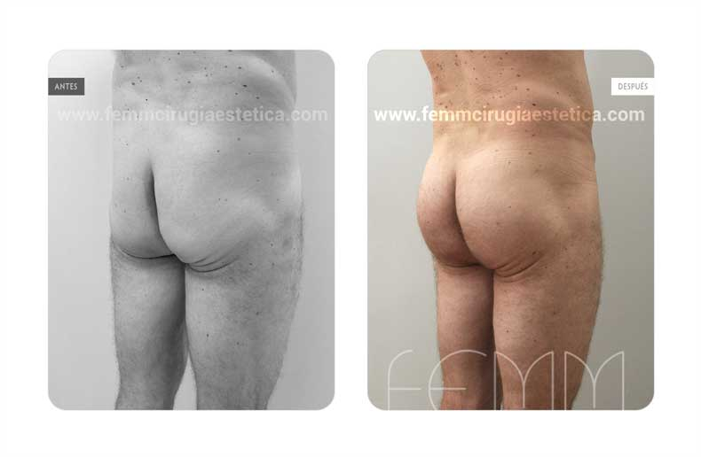 Aumento de glúteos con prótesis anatómicas de 365cc  · Caso 12 - Fotografía 1