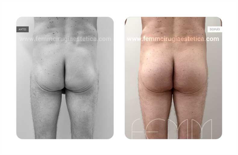 Aumento de glúteos con prótesis anatómicas de 365cc  · Caso 12 - Fotografía 2