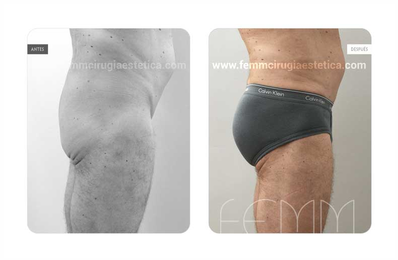 Aumento de glúteos con prótesis anatómicas de 365cc  · Caso 12 - Fotografía 5