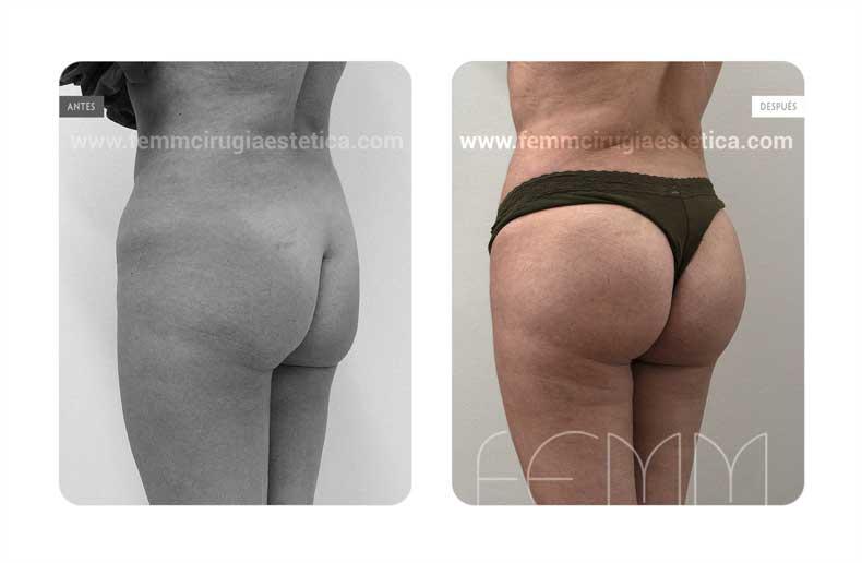 Aumento de glúteo con implantes anatómicos de 305cc · Caso 13 - Fotografía 1
