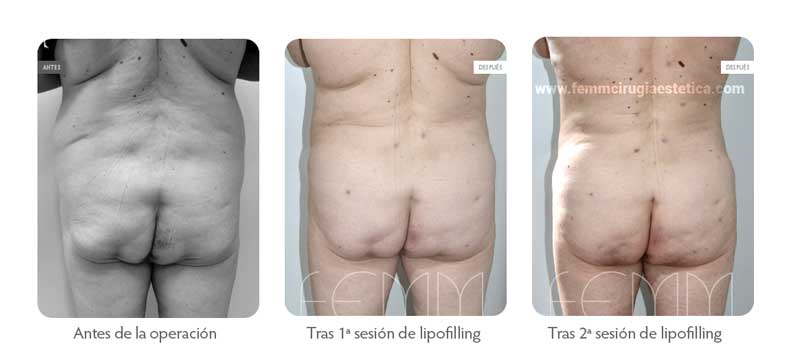Aumento de glúteos con grasa propia · Caso 9 - Fotografía 1