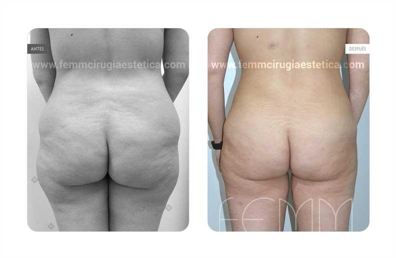 Aumento de glúteos con grasa propia · Caso 10 - Fotografía 1