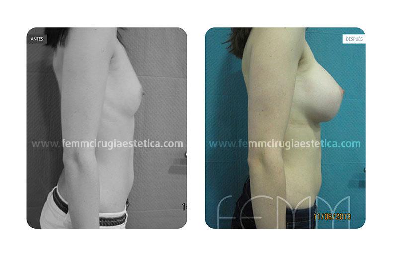 Aumento de pecho con prótesis anatómicas de 450cc · Caso 11 - Fotografía 1