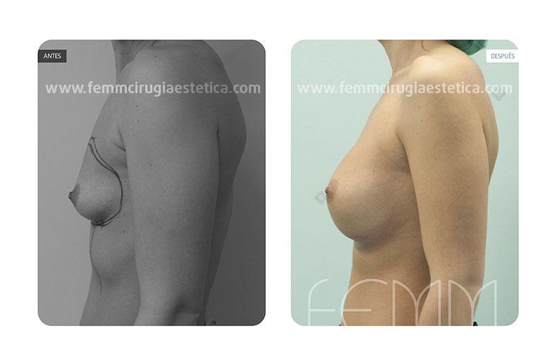 Aumento de pecho con prótesis anatómicas de 450cc · Caso 13 - Fotografía 1