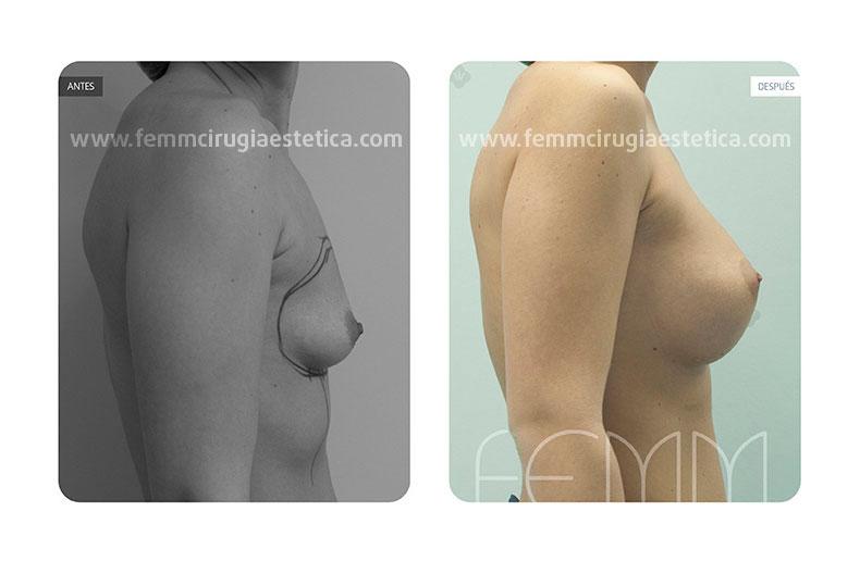 Aumento de pecho con prótesis anatómicas de 450cc · Caso 13 - Fotografía 3