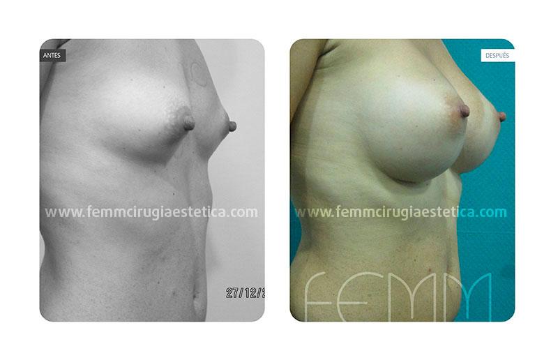 Aumento de pecho con prótesis anatómicas de 400cc · Caso 14 - Fotografía 4