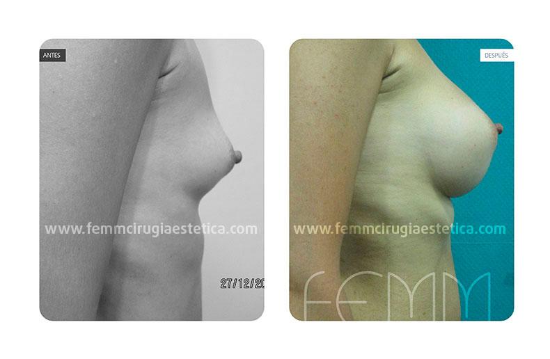 Aumento de pecho con prótesis anatómicas de 400cc · Caso 14 - Fotografía 5