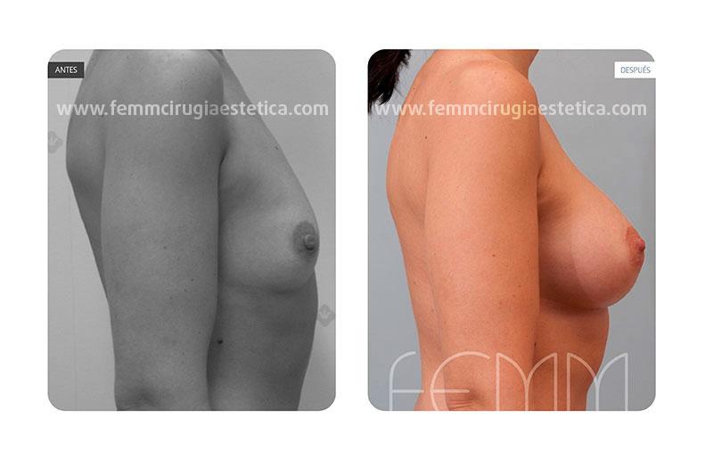 Aumento de pecho con prótesis anatómicas de 335cc · Caso 17 - Fotografía 2