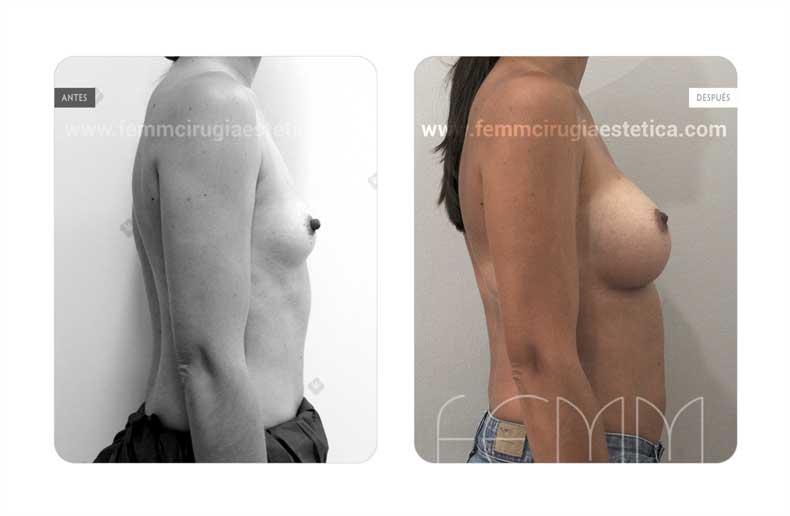 Aumento de pecho con prótesis anatómicas de 320cc · Caso 56 - Fotografía 3