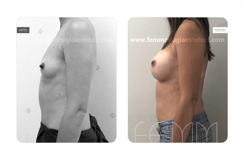 Aumento de pecho con prótesis anatómicas de 320cc · Caso 56 - Fotografía 4