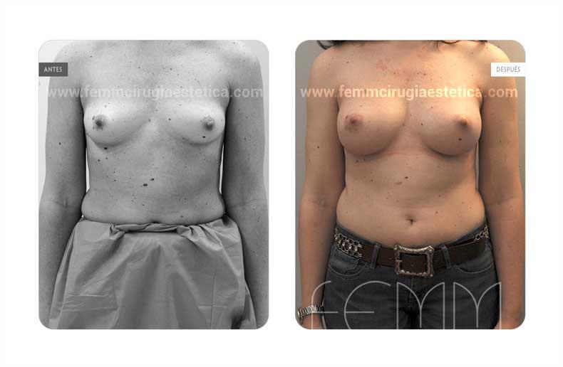 Aumento de pecho con prótesis anatómicas de 320cc · Caso 57 - Fotografía 1