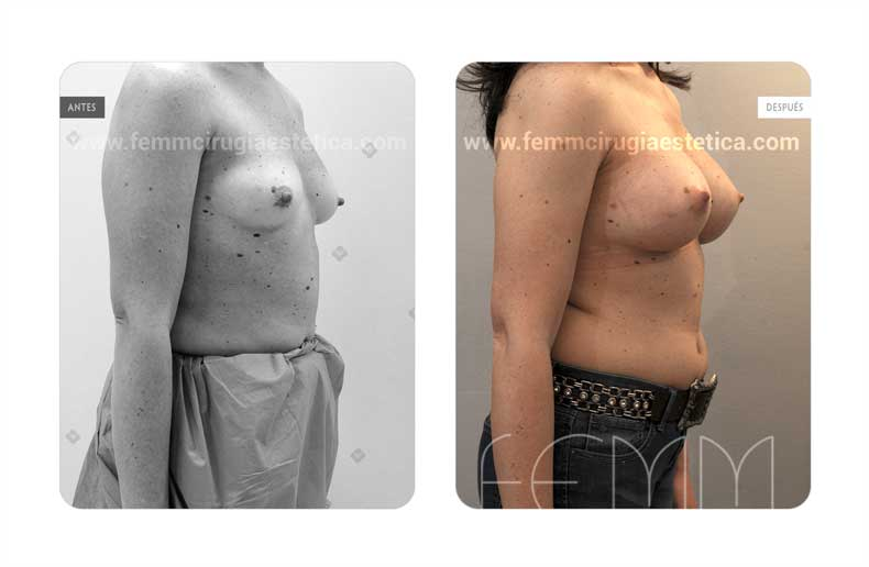 Aumento de pecho con prótesis anatómicas de 320cc · Caso 57 - Fotografía 2