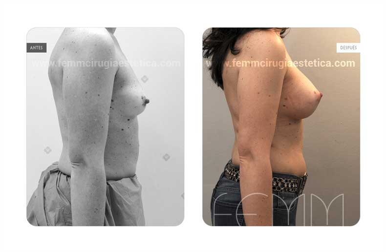 Aumento de pecho con prótesis anatómicas de 320cc · Caso 57 - Fotografía 3