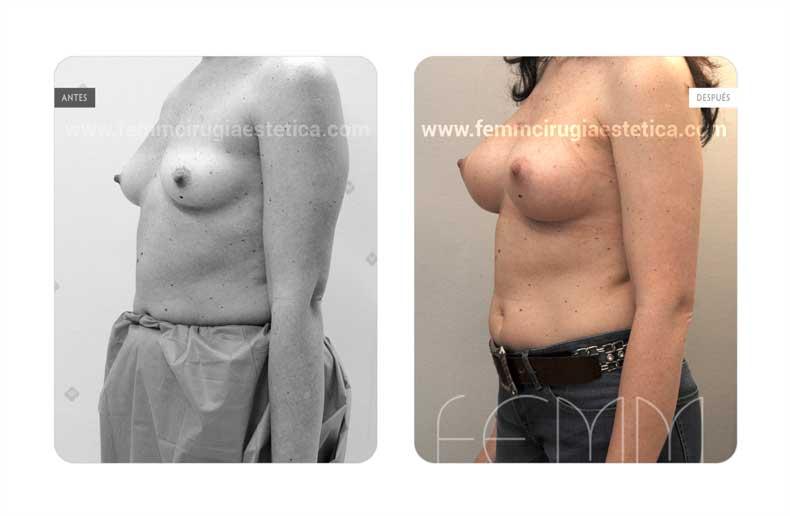 Aumento de pecho con prótesis anatómicas de 320cc · Caso 57 - Fotografía 4