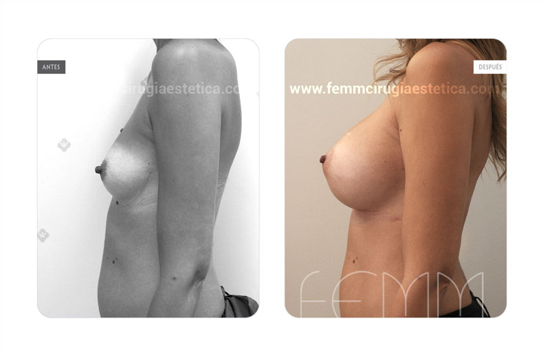 Aumento de pecho con prótesis anatómicas de 385cc  · Caso 59 - Fotografía 3